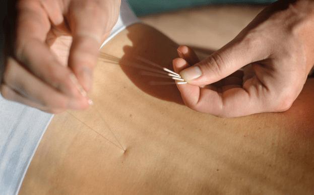 acupuntura barcelona endiometrosis