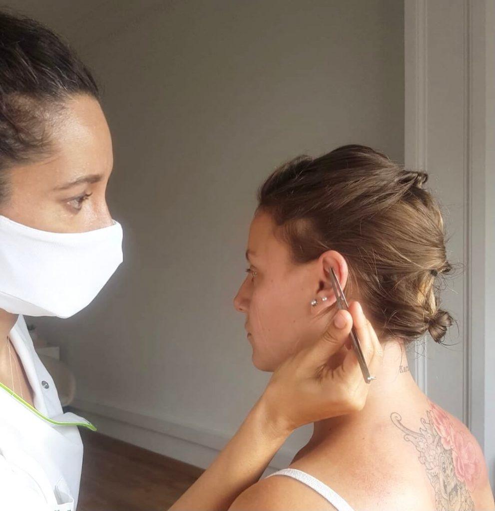 auriculoterapia barcelona